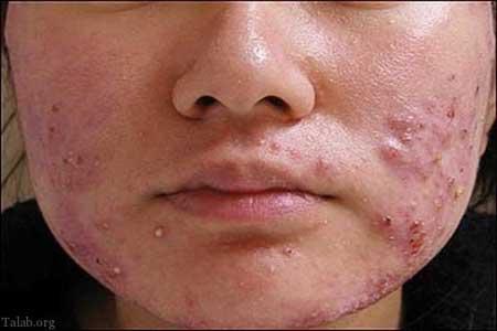 پاک نکردن آرایش همانا و جوش زدن همان اگر قبل از خواب آرایش تان را پاک نکنید، چه می گردد؟چگونه از ایجاد جوش جلوگیری کنیم؟