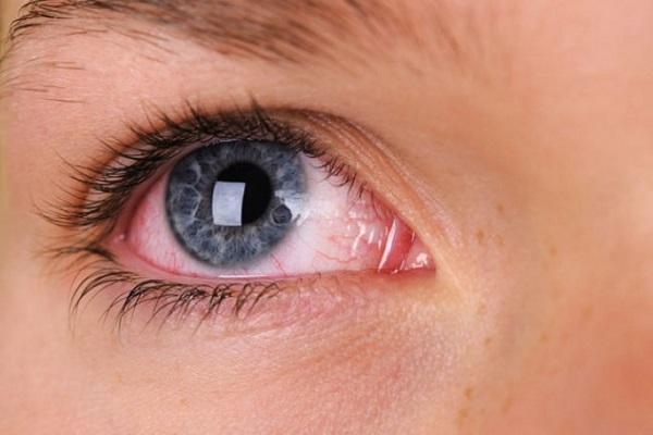 چرا چشممان قرمز می شود؟