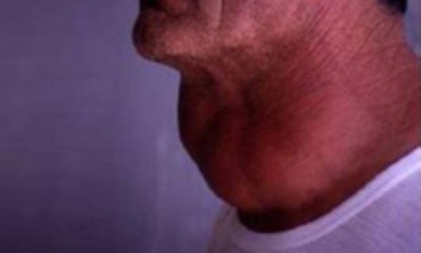 بیماری های مربوط به تیرویید